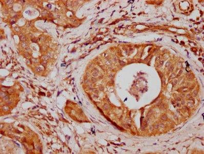 Immunohistochemistry (Formalin/PFA-fixed paraffin-embedded sections) - Anti-SNX10 antibody (ab238874)