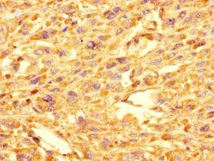 Immunohistochemistry (Formalin/PFA-fixed paraffin-embedded sections) - Anti-GOLPH3L antibody (ab238876)
