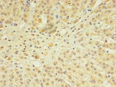 Immunohistochemistry (Formalin/PFA-fixed paraffin-embedded sections) - Anti-SNX24 antibody (ab238878)