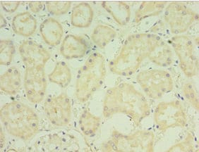 Immunohistochemistry (Formalin/PFA-fixed paraffin-embedded sections) - Anti-FGF6 antibody (ab238879)