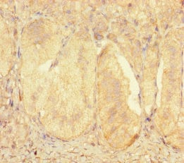 Immunohistochemistry (Formalin/PFA-fixed paraffin-embedded sections) - Anti-ZNF175 antibody (ab238898)