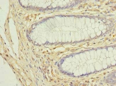 Immunohistochemistry (Formalin/PFA-fixed paraffin-embedded sections) - Anti-COX11 antibody (ab238902)