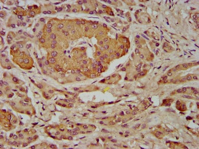 Immunohistochemistry (Formalin/PFA-fixed paraffin-embedded sections) - Anti-INPP5B antibody (ab238909)
