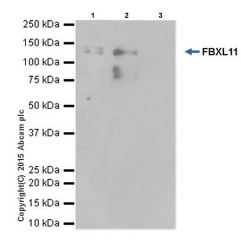 Immunoprecipitation - Anti-KDM2A antibody [EPR18602] - BSA and Azide free (ab238945)