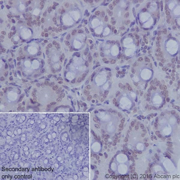Immunohistochemistry (Formalin/PFA-fixed paraffin-embedded sections) - Anti-KDM2A antibody [EPR18602] - BSA and Azide free (ab238945)