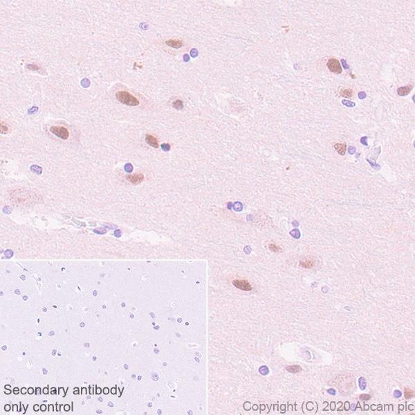 Immunohistochemistry paraffin embedded sections - Anti-USP22 antibody [EPR18945] - BSA and Azide free (ab238948)