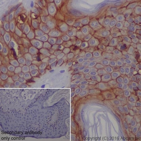 Immunohistochemistry (Formalin/PFA-fixed paraffin-embedded sections) - Anti-Claudin 1 antibody [EPRR18871] - BSA and Azide free (ab238949)