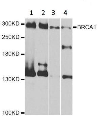 Western blot - Anti-BRCA1 antibody (ab238983)