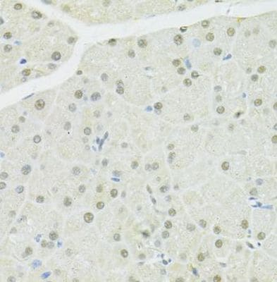 Immunohistochemistry (Formalin/PFA-fixed paraffin-embedded sections) - Anti-BRCA1 antibody (ab238983)
