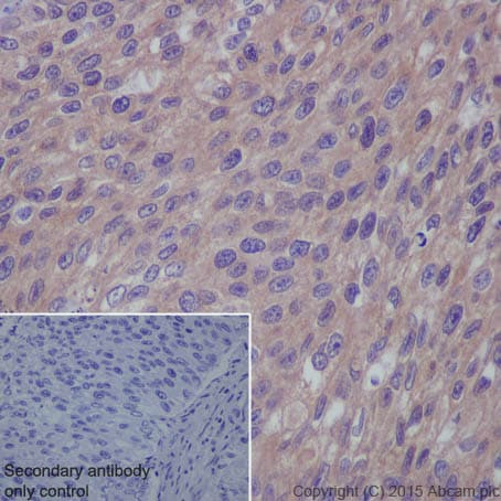 Immunohistochemistry (Formalin/PFA-fixed paraffin-embedded sections) - Anti-RAB7 antibody [EPR7588(B)] - BSA and Azide free (ab238990)