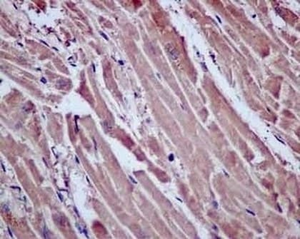 Immunohistochemistry (Formalin/PFA-fixed paraffin-embedded sections) - Anti-Proteasome Activator Subunit 4/PSME4 antibody [EPR13577(B)] - BSA and Azide free (ab238996)