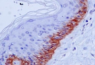Immunohistochemistry (Formalin/PFA-fixed paraffin-embedded sections) - Anti-Collagen XVII antibody [EPR14758] - BSA and Azide free (ab239005)