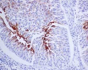 Immunohistochemistry (Formalin/PFA-fixed paraffin-embedded sections) - Anti-Uroplakin III antibody [EPR14420] - BSA and Azide free (ab239006)