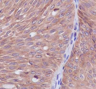 Immunohistochemistry (Formalin/PFA-fixed paraffin-embedded sections) - Anti-Syntrophin alpha 1 antibody [EPR14828] - BSA and Azide free (ab239008)