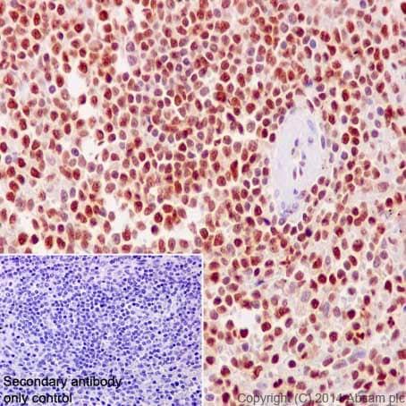 Immunohistochemistry (Formalin/PFA-fixed paraffin-embedded sections) - Anti-PHAPI2 / APRIL antibody [EPR14588] - BSA and Azide free (ab239014)