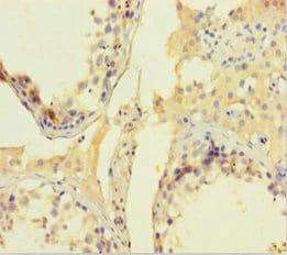 Immunohistochemistry (Formalin/PFA-fixed paraffin-embedded sections) - Anti-CNKR2 antibody (ab239026)