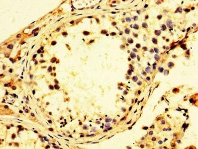 Immunohistochemistry (Formalin/PFA-fixed paraffin-embedded sections) - Anti-TBP-1 antibody (ab239029)