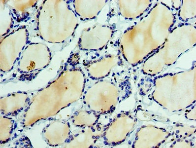 Immunohistochemistry (Formalin/PFA-fixed paraffin-embedded sections) - Anti-Ephrin A3 antibody (ab239067)