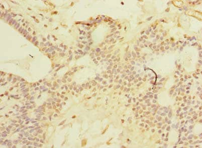 Immunohistochemistry (Formalin/PFA-fixed paraffin-embedded sections) - Anti-SCNM1 antibody (ab239070)