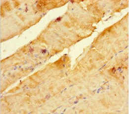 Immunohistochemistry (Formalin/PFA-fixed paraffin-embedded sections) - Anti-SCOC antibody (ab239072)