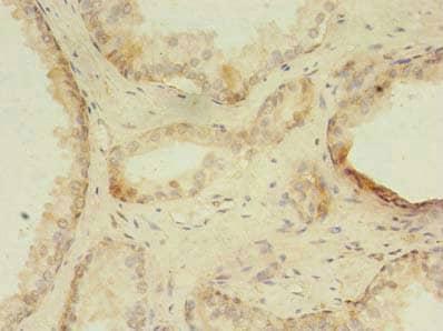 Immunohistochemistry (Formalin/PFA-fixed paraffin-embedded sections) - Anti-ZNF502 antibody (ab239088)