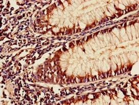 Immunohistochemistry (Formalin/PFA-fixed paraffin-embedded sections) - Anti-YAF2 antibody (ab239150)