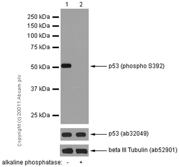 Western blot - Anti-p53 (phospho S392) antibody [EP155Y] - BSA and Azide free (ab239211)
