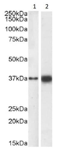 Western blot - Anti-SOX2 antibody (ab239218)