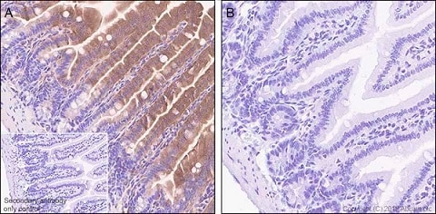 Immunohistochemistry (Formalin/PFA-fixed paraffin-embedded sections) - Anti-GSDMD antibody [EPR20859] - BSA and Azide free (ab239377)