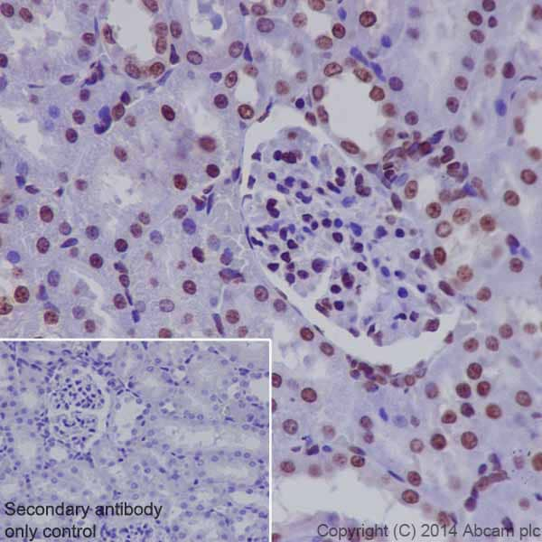 Immunohistochemistry (Formalin/PFA-fixed paraffin-embedded sections) - Anti-Histone H3 (di methyl K9) antibody [EP16990] - BSA and Azide free (ab239403)