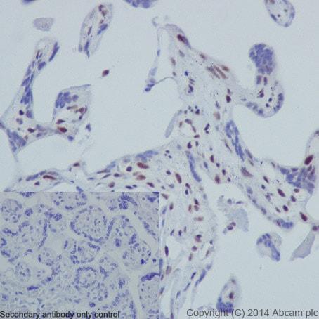Immunohistochemistry (Formalin/PFA-fixed paraffin-embedded sections) - Anti-Histone H3 (phospho S10) antibody [EPR17246] - BSA and Azide free (ab239405)