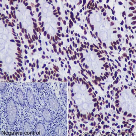 Immunohistochemistry (Formalin/PFA-fixed paraffin-embedded sections) - Anti-Histone H3 (acetyl K18) antibody [EPR16595] - BSA and Azide free (ab239414)