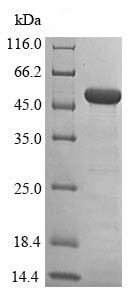 SDS-PAGE - Recombinant Human SET7 protein (Tagged) (ab239446)