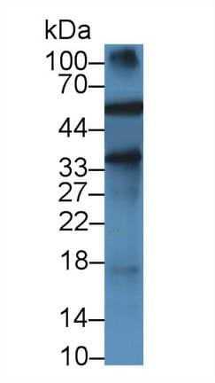 Western blot - Anti-Alpha 1 Acid Glycoprotein/AGP antibody [C1] (ab239473)