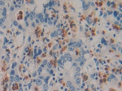 Immunohistochemistry (Formalin/PFA-fixed paraffin-embedded sections) - Anti-IL-6 antibody [F8] (ab239482)
