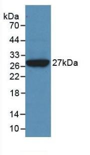 Western blot - Anti-Clusterin antibody [C2] (ab239486)