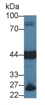 Western blot - Anti-Aspartate Aminotransferase antibody [C1] (ab239487)