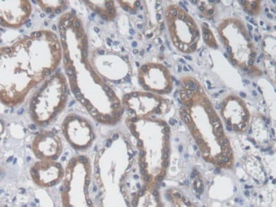 Immunohistochemistry (Formalin/PFA-fixed paraffin-embedded sections) - Anti-Aspartate Aminotransferase antibody [C1] (ab239487)