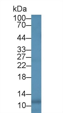 Western blot - Anti-IL-8 antibody [C4] (ab239493)