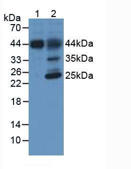Western blot - Anti-Hemojuvelin antibody [C6] (ab239495)