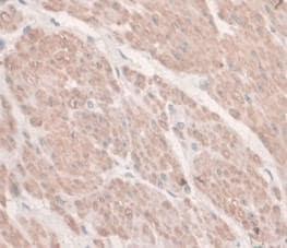 Immunohistochemistry (Formalin/PFA-fixed paraffin-embedded sections) - Anti-Hemojuvelin antibody [C6] (ab239495)
