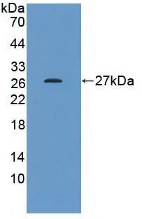 Western blot - Anti-Hsp27 antibody [D2] (ab239499)
