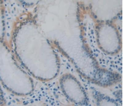 Immunohistochemistry (Formalin/PFA-fixed paraffin-embedded sections) - Anti-Hsp27 antibody [D2] (ab239499)