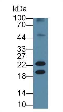 Western blot - Anti-Neurokinin A antibody [C1] (ab239503)