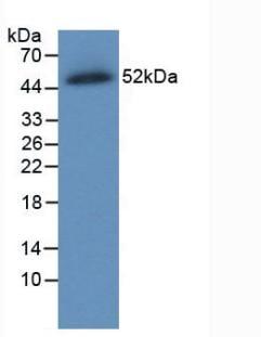 Western blot - Anti-SLC40A1 antibody [C8] (ab239511)