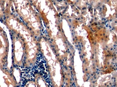 Immunohistochemistry (Formalin/PFA-fixed paraffin-embedded sections) - Anti-Stanniocalcin 1/STC antibody [C5] (ab239518)