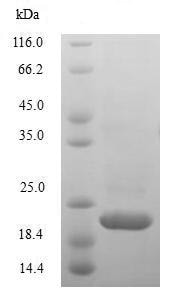 SDS-PAGE - Recombinant Rhesus monkey IL-10 protein (His tag) (ab239538)