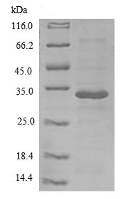 SDS-PAGE - Recombinant Human IL-26 protein (Tagged) (ab239573)