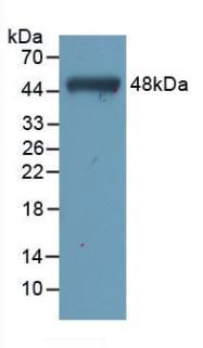 Western blot - Anti-TNNC1 antibody [C5] (ab239578)