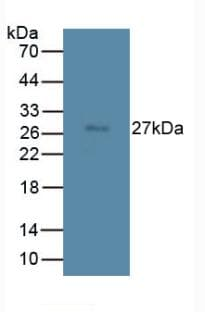 Western blot - Anti-Tmem27 antibody [C7] (ab239586)